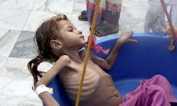 السعودية عرضت اليمن لأسوأ أزمة إنسانية في العالم