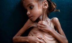 التحالف السعودي يسرق المساعدات من أفواه الجائعين في اليمن؟